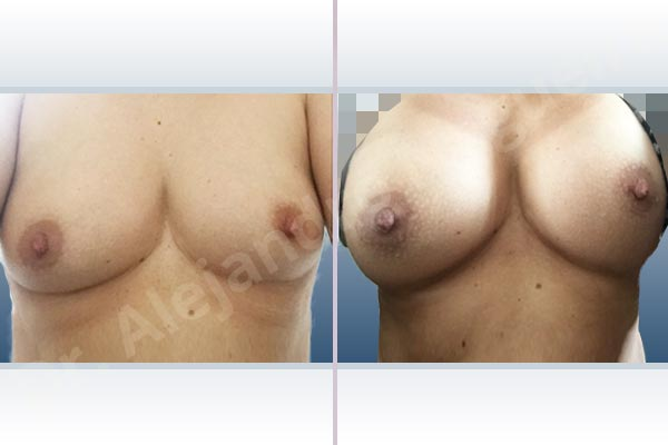 Asymmetric breasts,Cross eyed breasts,Empty breasts,Slightly saggy droopy breasts,Small breasts,Anatomical shape,Lower hemi periareolar incision,Subfascial pocket plane - photo 1