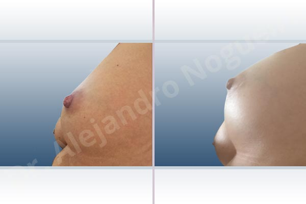Asymmetric breasts,Cross eyed breasts,Empty breasts,Slightly saggy droopy breasts,Small breasts,Anatomical shape,Lower hemi periareolar incision,Subfascial pocket plane - photo 2
