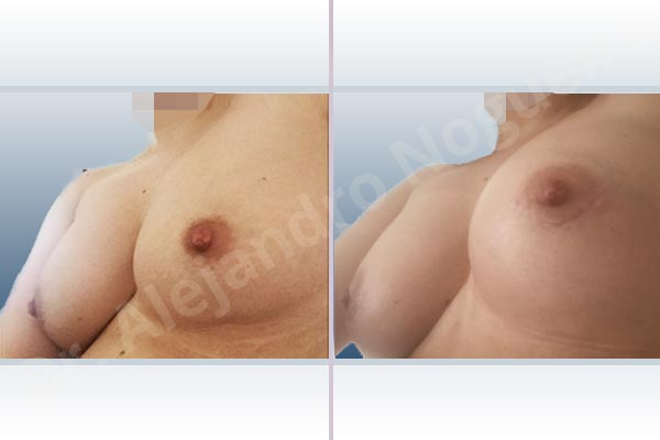 Asymmetric breasts,Cross eyed breasts,Empty breasts,Slightly saggy droopy breasts,Small breasts,Anatomical shape,Lower hemi periareolar incision,Subfascial pocket plane - photo 3