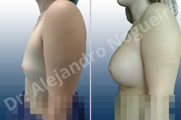 Asymmetric breasts,Empty breasts,Small breasts,Sunken chest,Wide breasts,Inframammary incision,Round shape,Subfascial pocket plane - photo 2