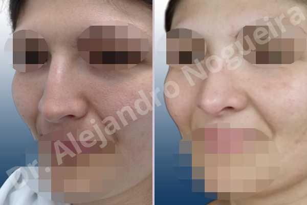 Alar rim retraction,Andine nose,Arabic nose,Asian nose,Asymmetric nose,Asymmetric tip,Bifid tip,Concave lateral cruras,Congenital nose,Crooked nose,Dorsum hump,Dorsum ridges,Hispanic nose,Humpless dorsum,Jewish nose,Low radix,Mixed race blood,Narrow dorsum,Narrow nose,Overrotated tip,Pinched middle vault,Pinched nose,Pointy tip,Poorly supported tip,Rhomboid dorsum,Short nose,Short septum,Short upper lateral cartilages,Small alar cartilages,Small nose,Sunken columella,Sunken supratip,Tension nose,Thin skin nose,Underprojected tip,Columella lengthening,Custom made tip graft,Dorsum hump resection,Dorsum plateau resection,Ear cartilage graft harvesting,Extended shield tip columella graft,Intercrural columella plasty sutures,Interdomal tip plasty sutures,Lateral cruras batten graft,Lateral cruras caudal extension graft,Lateral cruras custom made graft,Lateral cruras lengthening graft,Lateral cruras replacement graft,Lateral cruras repositioning,Medial cruras custom made graft,Nasal bones osteotomies,Onlay columella graft,Onlay supratip graft,Onlay tip graft,Open approach incision,Shield tip graft,Spreader graft,Temporalis fascia graft harvesting,Tip replacement graft,Triangular cartilages caudal extension graft - photo 4