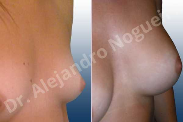 Asymmetric breasts,Narrow breasts,Small breasts,Too far apart wide cleavage breasts,Lateral breasts,Anatomical shape,Inframammary incision,Subfascial pocket plane - photo 3