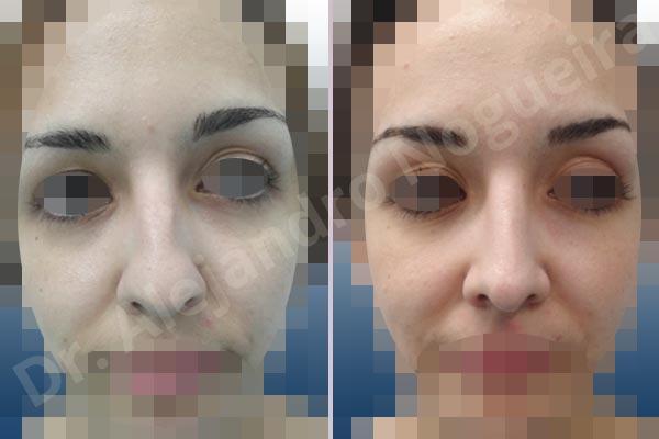 Jewish nose,Bifid columella,Bifid tip,Boxy tip,Broad dorsum,Bulbous tip,Dorsum hump,Dorsum ridges,Droopy tip,Flat dorsum,High dorsum,Large alar cartilages,Large nose,Long upper lateral cartilages,Parenthesis tip deformity,Plunging tip deformity,Polly beak deformity,Poorly defined tip,Rhomboid dorsum,Supratip break,Thin skin nose,Custom made tip graft,Dorsum hump resection,Dorsum plateau resection,Ear cartilage graft harvesting,Intercrural columella plasty sutures,Interdomal tip plasty sutures,Lateral cruras cephalic resection,Lateral cruras repositioning,Lateral cruras shortening resection,Lateral cruras strut graft,Nasal bones osteotomies,Open approach incision,Shield tip graft,Tip defatting,Transdomal tip plasty scoring,Transdomal tip plasty sutures