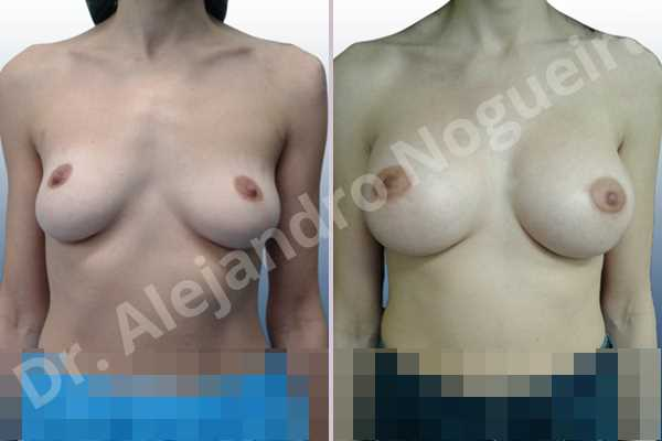 Cross eyed breasts,Empty breasts,Lateral breasts,Mildly saggy droopy breasts,Pendulous breasts,Small breasts,Sunken chest,Too far apart wide cleavage breasts,Wide breasts,Anatomical shape,Lower hemi periareolar incision,Subfascial pocket plane - photo 1