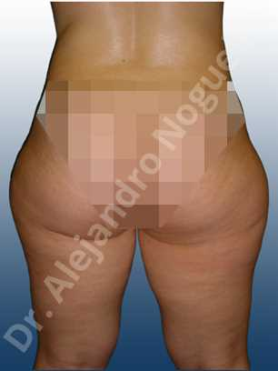 Banana rolls flab,Fatty inner knee,Saddle bags flab,Thigh gap flab,Tumescent liposuction