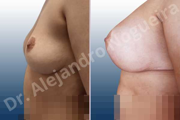 Asymmetric breasts,Breast tissue bottoming out,Cross eyed breasts,Empty breasts,Failed breast reduction,Pendulous breasts,Pigeon chest,Slightly saggy droopy breasts,Small breasts,Wide breasts,Anatomical shape,Anchor incision,Custom incision,Extra large size,Subfascial pocket plane - photo 2