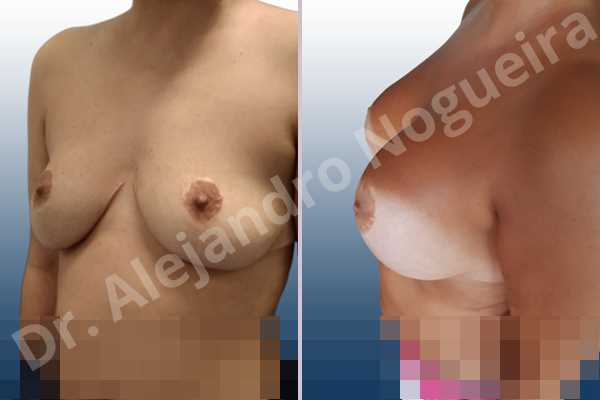 Asymmetric breasts,Breast tissue bottoming out,Cross eyed breasts,Empty breasts,Failed breast reduction,Pendulous breasts,Pigeon chest,Slightly saggy droopy breasts,Small breasts,Wide breasts,Anatomical shape,Anchor incision,Custom incision,Extra large size,Subfascial pocket plane - photo 3