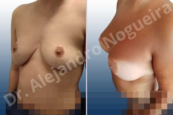 Asymmetric breasts,Breast tissue bottoming out,Cross eyed breasts,Empty breasts,Failed breast reduction,Pendulous breasts,Pigeon chest,Slightly saggy droopy breasts,Small breasts,Wide breasts,Anatomical shape,Anchor incision,Custom incision,Extra large size,Subfascial pocket plane - photo 4