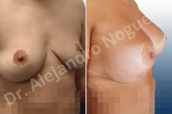 Asymmetric breasts,Breast tissue bottoming out,Cross eyed breasts,Empty breasts,Failed breast reduction,Pendulous breasts,Pigeon chest,Slightly saggy droopy breasts,Small breasts,Wide breasts,Anatomical shape,Anchor incision,Custom incision,Extra large size,Subfascial pocket plane - photo 6