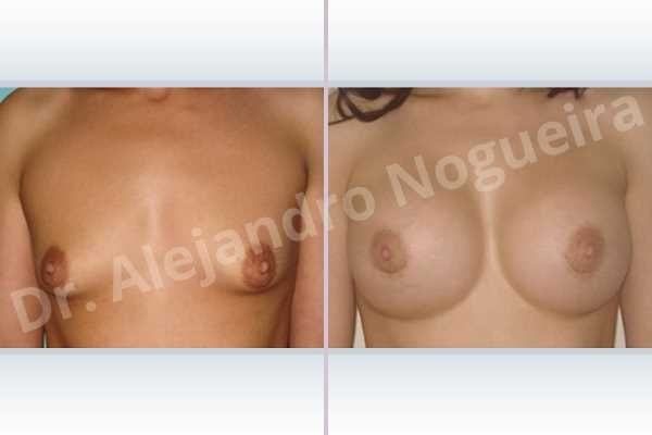 Lateral breasts,Skinny breasts,Small breasts,Too far apart wide cleavage breasts,Tuberous breasts,Extra large size,Lower hemi periareolar incision,Round shape,Subfascial pocket plane,Tuberous mammoplasty - photo 1