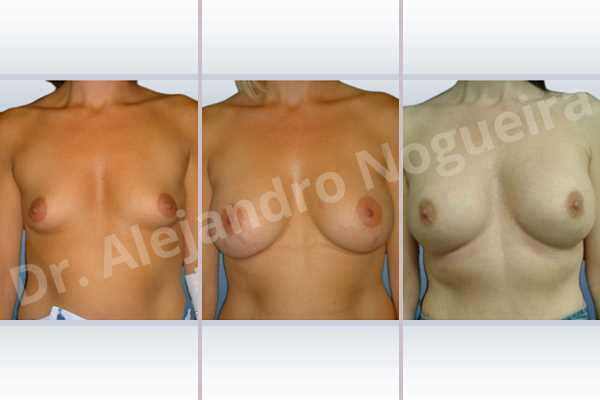 Empty breasts,Lateral breasts,Small breasts,Too far apart wide cleavage breasts,Dual plane pocket,Lower hemi periareolar incision,Round shape - photo 1