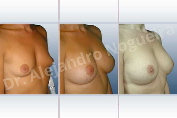 Empty breasts,Lateral breasts,Small breasts,Too far apart wide cleavage breasts,Dual plane pocket,Lower hemi periareolar incision,Round shape - photo 5