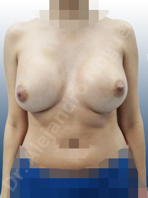 Asymmetric breasts,Breast implants capsular contracture,Breast implants displacement malposition,Breast implants riding too high,Cross eyed breasts,Cross eyed breasts implants,Empty breasts,Lateral breasts,Small breasts,Too far apart wide cleavage breasts,Wide breasts,Anatomical shape,Capsulectomy,Lower hemi periareolar incision,Subfascial pocket plane