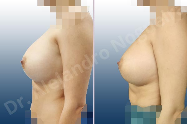 Asymmetric breasts,Breast implants capsular contracture,Breast implants displacement malposition,Breast implants riding too high,Cross eyed breasts,Cross eyed breasts implants,Empty breasts,Lateral breasts,Small breasts,Too far apart wide cleavage breasts,Wide breasts,Anatomical shape,Capsulectomy,Lower hemi periareolar incision,Subfascial pocket plane - photo 2