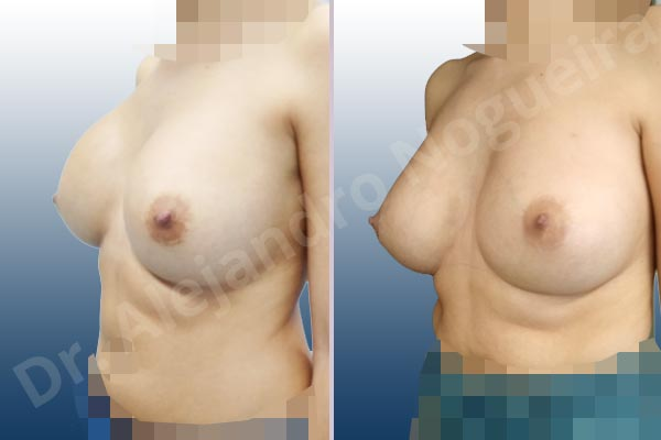 Asymmetric breasts,Breast implants capsular contracture,Breast implants displacement malposition,Breast implants riding too high,Cross eyed breasts,Cross eyed breasts implants,Empty breasts,Lateral breasts,Small breasts,Too far apart wide cleavage breasts,Wide breasts,Anatomical shape,Capsulectomy,Lower hemi periareolar incision,Subfascial pocket plane - photo 3