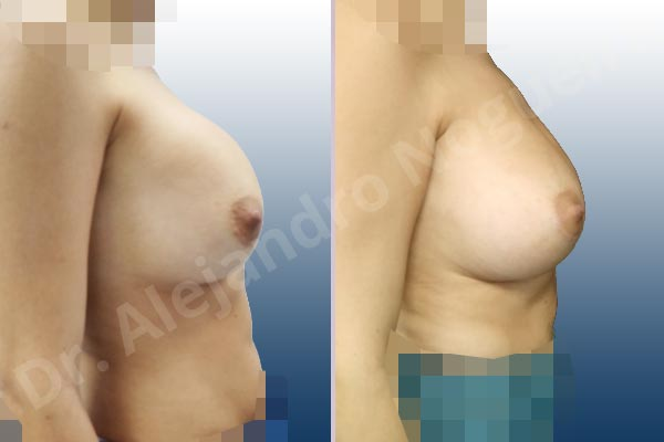 Asymmetric breasts,Breast implants capsular contracture,Breast implants displacement malposition,Breast implants riding too high,Cross eyed breasts,Cross eyed breasts implants,Empty breasts,Lateral breasts,Small breasts,Too far apart wide cleavage breasts,Wide breasts,Anatomical shape,Capsulectomy,Lower hemi periareolar incision,Subfascial pocket plane - photo 4