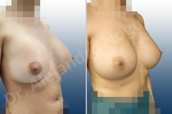 Asymmetric breasts,Breast implants capsular contracture,Breast implants displacement malposition,Breast implants riding too high,Cross eyed breasts,Cross eyed breasts implants,Empty breasts,Lateral breasts,Small breasts,Too far apart wide cleavage breasts,Wide breasts,Anatomical shape,Capsulectomy,Lower hemi periareolar incision,Subfascial pocket plane - photo 5