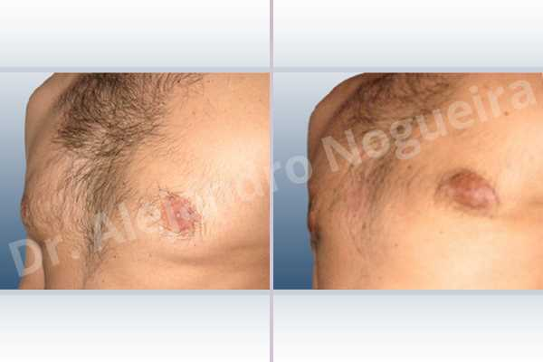 Gynecomastia,Subcutaneous mastectomy,Transareolar incision - photo 3