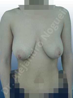 Asymmetric breasts,Empty breasts,Pendulous breasts,Severely saggy droopy breasts,Anatomical shape,Extra large size,Lollipop incision,Subfascial pocket plane,Superior pedicle