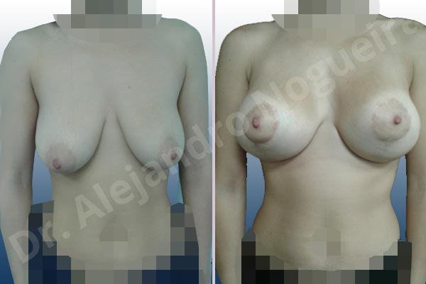 Asymmetric breasts,Empty breasts,Pendulous breasts,Severely saggy droopy breasts,Anatomical shape,Extra large size,Lollipop incision,Subfascial pocket plane,Superior pedicle - photo 1