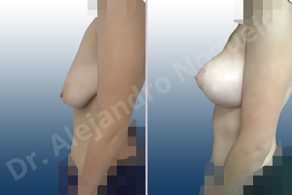 Asymmetric breasts,Empty breasts,Pendulous breasts,Severely saggy droopy breasts,Anatomical shape,Extra large size,Lollipop incision,Subfascial pocket plane,Superior pedicle - photo 2