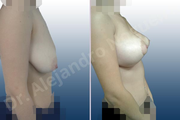 Asymmetric breasts,Empty breasts,Pendulous breasts,Severely saggy droopy breasts,Anatomical shape,Extra large size,Lollipop incision,Subfascial pocket plane,Superior pedicle - photo 4
