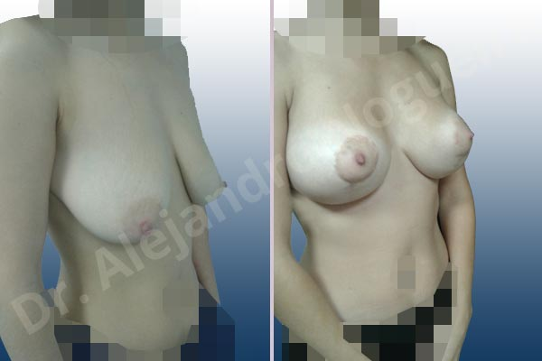 Asymmetric breasts,Empty breasts,Pendulous breasts,Severely saggy droopy breasts,Anatomical shape,Extra large size,Lollipop incision,Subfascial pocket plane,Superior pedicle - photo 5