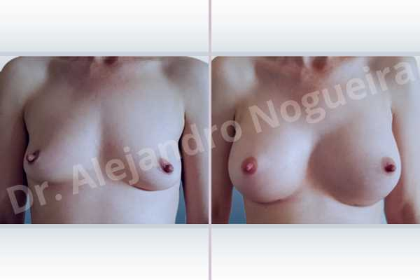 Cross eyed breasts,Empty breasts,Lateral breasts,Skinny breasts,Slightly saggy droopy breasts,Small breasts,Too far apart wide cleavage breasts,Wide breasts,Anatomical shape,Inframammary incision,Subfascial pocket plane - photo 1