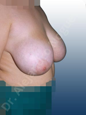 Extremely saggy droopy breasts,Severely large breasts,Tuberous breasts,Anchor incision,Double vertical pedicle