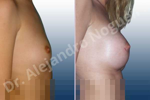 Lateral breasts,Pigeon chest,Skinny breasts,Small breasts,Too far apart wide cleavage breasts,Lower hemi periareolar incision,Round shape,Subfascial pocket plane - photo 3