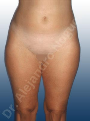 Banana rolls flab,Fatty abdomen,Saddle bags flab,Thigh gap flab,Tumescent liposuction