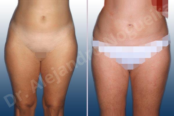 Banana rolls flab,Fatty abdomen,Saddle bags flab,Thigh gap flab,Tumescent liposuction