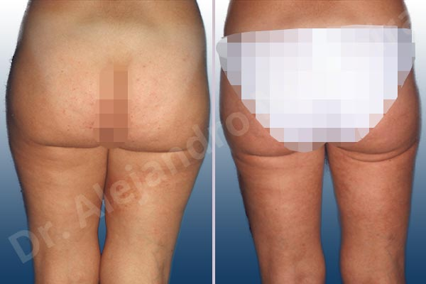 Before & After Case YLRTJEKM