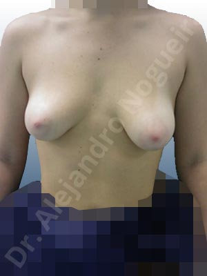 Asymmetric breasts,Empty breasts,Large areolas,Mildly saggy droopy breasts,Narrow breasts,Slightly saggy droopy breasts,Small breasts,Too far apart wide cleavage breasts,Tuberous breasts,Anatomical shape,Areola reduction,Circumareolar incision,Subfascial pocket plane,Tuberous mammoplasty