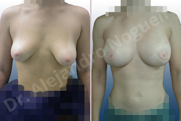 Asymmetric breasts,Empty breasts,Large areolas,Mildly saggy droopy breasts,Narrow breasts,Slightly saggy droopy breasts,Small breasts,Too far apart wide cleavage breasts,Tuberous breasts,Anatomical shape,Areola reduction,Circumareolar incision,Subfascial pocket plane,Tuberous mammoplasty - photo 1