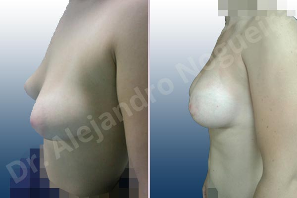 Asymmetric breasts,Empty breasts,Large areolas,Mildly saggy droopy breasts,Narrow breasts,Slightly saggy droopy breasts,Small breasts,Too far apart wide cleavage breasts,Tuberous breasts,Anatomical shape,Areola reduction,Circumareolar incision,Subfascial pocket plane,Tuberous mammoplasty - photo 4