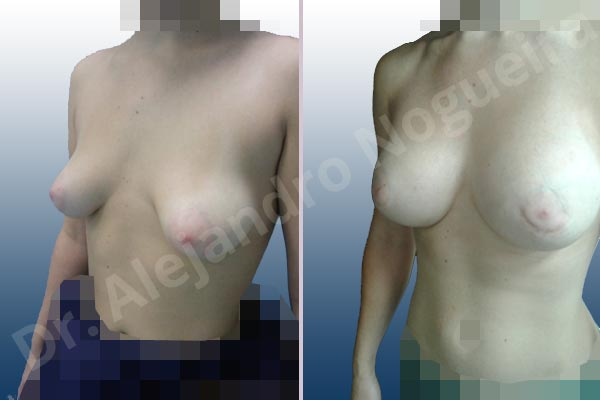 Asymmetric breasts,Empty breasts,Large areolas,Mildly saggy droopy breasts,Narrow breasts,Slightly saggy droopy breasts,Small breasts,Too far apart wide cleavage breasts,Tuberous breasts,Anatomical shape,Areola reduction,Circumareolar incision,Subfascial pocket plane,Tuberous mammoplasty - photo 5