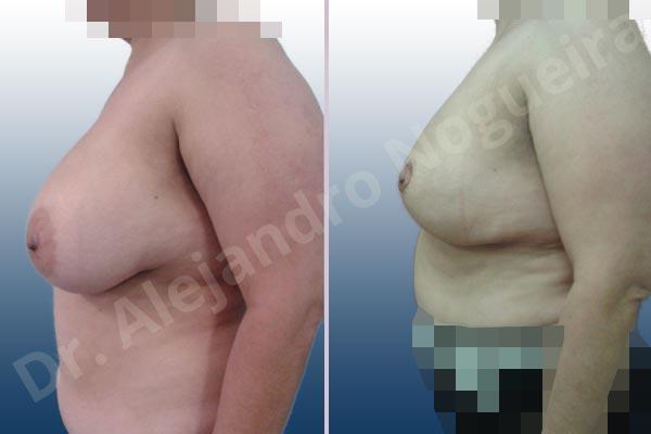 Before & After Case YU8TLWEK