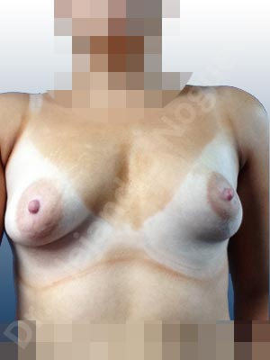 Asymmetric breasts,Empty breasts,Large areolas,Lateral breasts,Mildly saggy droopy breasts,Narrow breasts,Skinny breasts,Slightly saggy droopy breasts,Small breasts,Sunken scars,Too far apart wide cleavage breasts,Tuberous breasts,Anatomical shape,Areola reduction,Circumareolar incision,Subfascial pocket plane,Tuberous mammoplasty