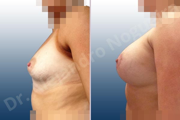 Asymmetric breasts,Empty breasts,Large areolas,Lateral breasts,Mildly saggy droopy breasts,Narrow breasts,Skinny breasts,Slightly saggy droopy breasts,Small breasts,Sunken scars,Too far apart wide cleavage breasts,Tuberous breasts,Anatomical shape,Areola reduction,Circumareolar incision,Subfascial pocket plane,Tuberous mammoplasty - photo 2
