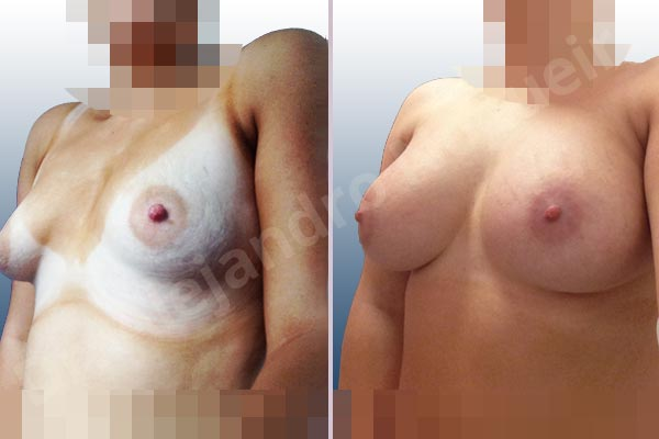 Asymmetric breasts,Empty breasts,Large areolas,Lateral breasts,Mildly saggy droopy breasts,Narrow breasts,Skinny breasts,Slightly saggy droopy breasts,Small breasts,Sunken scars,Too far apart wide cleavage breasts,Tuberous breasts,Anatomical shape,Areola reduction,Circumareolar incision,Subfascial pocket plane,Tuberous mammoplasty - photo 3