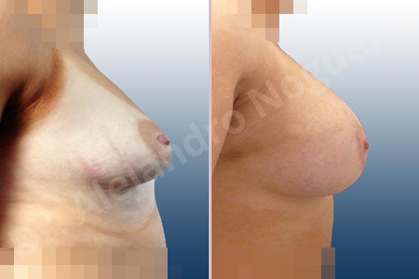 Asymmetric breasts,Empty breasts,Large areolas,Lateral breasts,Mildly saggy droopy breasts,Narrow breasts,Skinny breasts,Slightly saggy droopy breasts,Small breasts,Sunken scars,Too far apart wide cleavage breasts,Tuberous breasts,Anatomical shape,Areola reduction,Circumareolar incision,Subfascial pocket plane,Tuberous mammoplasty - photo 4