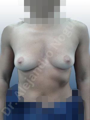 Asymmetric breasts,Empty breasts,Skinny breasts,Slightly saggy droopy breasts,Small breasts,Anatomical shape,Extra large size,Lower hemi periareolar incision,Subfascial pocket plane