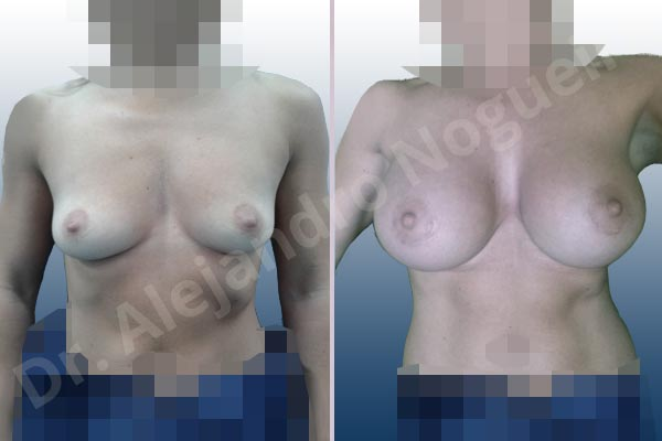 Asymmetric breasts,Empty breasts,Skinny breasts,Slightly saggy droopy breasts,Small breasts,Anatomical shape,Extra large size,Lower hemi periareolar incision,Subfascial pocket plane - photo 1
