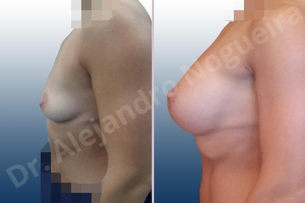 Asymmetric breasts,Empty breasts,Skinny breasts,Slightly saggy droopy breasts,Small breasts,Anatomical shape,Extra large size,Lower hemi periareolar incision,Subfascial pocket plane - photo 2
