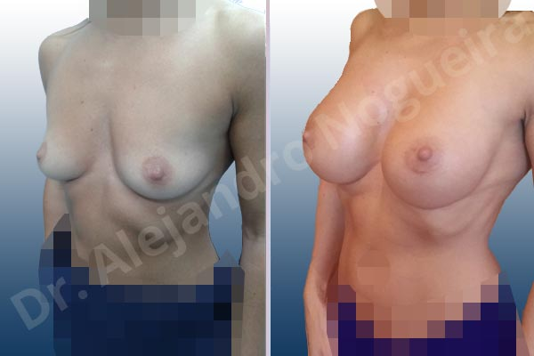 Asymmetric breasts,Empty breasts,Skinny breasts,Slightly saggy droopy breasts,Small breasts,Anatomical shape,Extra large size,Lower hemi periareolar incision,Subfascial pocket plane - photo 3