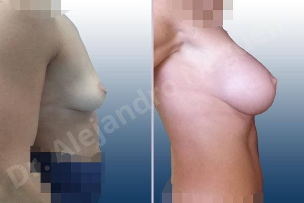 Asymmetric breasts,Empty breasts,Skinny breasts,Slightly saggy droopy breasts,Small breasts,Anatomical shape,Extra large size,Lower hemi periareolar incision,Subfascial pocket plane - photo 4