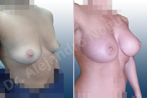 Asymmetric breasts,Empty breasts,Skinny breasts,Slightly saggy droopy breasts,Small breasts,Anatomical shape,Extra large size,Lower hemi periareolar incision,Subfascial pocket plane - photo 5
