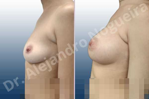 Asymmetric breasts,Cross eyed breasts,Empty breasts,Lateral breasts,Moderately saggy droopy breasts,Pendulous breasts,Pigeon chest,Small breasts,Too far apart wide cleavage breasts,Anatomical shape,Lower hemi periareolar incision,Subfascial pocket plane - photo 2