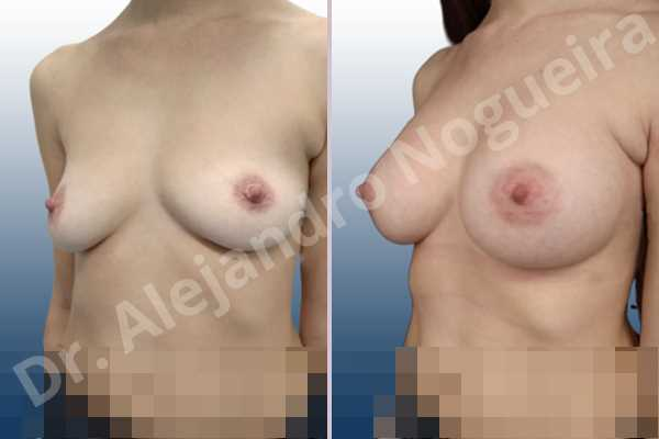 Asymmetric breasts,Cross eyed breasts,Empty breasts,Lateral breasts,Moderately saggy droopy breasts,Pendulous breasts,Pigeon chest,Small breasts,Too far apart wide cleavage breasts,Anatomical shape,Lower hemi periareolar incision,Subfascial pocket plane - photo 3